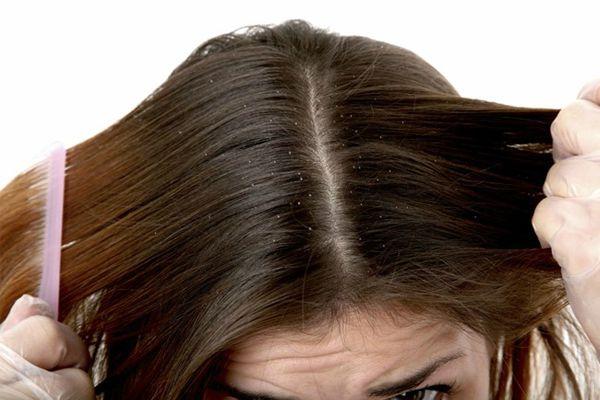 Trị gàu, dưỡng tóc hiệu quả